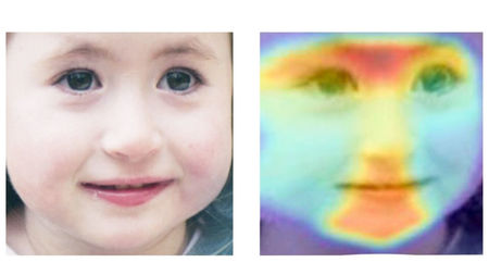 Using Artificial Intelligence on Facial Recognition  Detects Rare Genetic Disorders