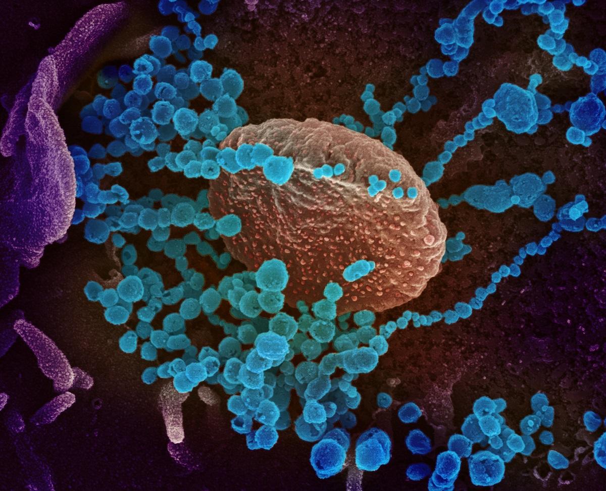 Israeli Lab Says Antiviral Drug May Work Against Coronavirus